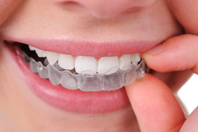 Ortodoncia invisible: La solución más discreta.