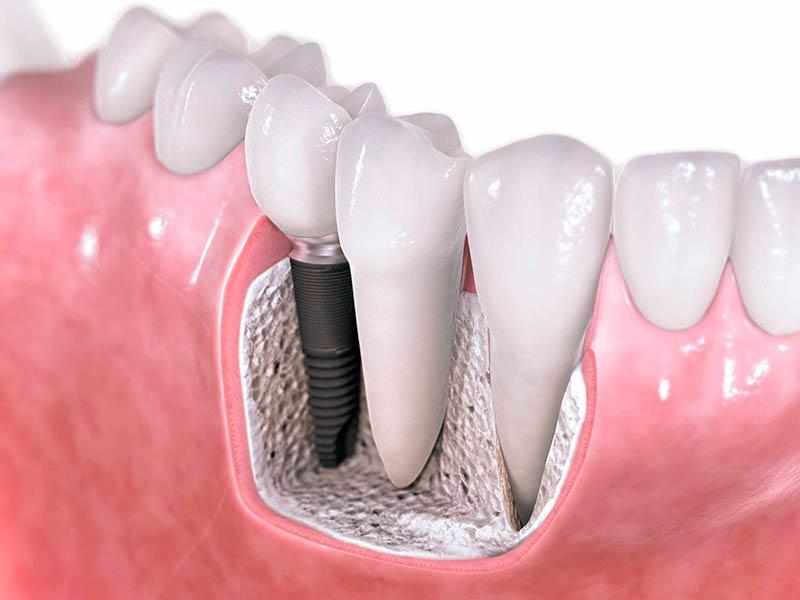 Cuidados después de la colocación de un implante dental