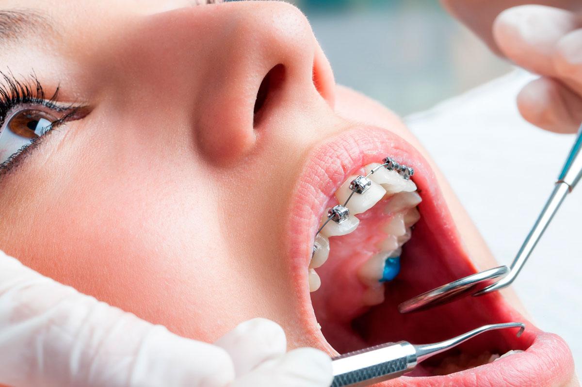 Cuidados periodontales con ortodoncia