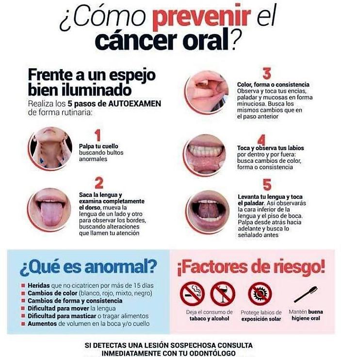 ¿Se puede autodiagnosticar el cáncer oral?