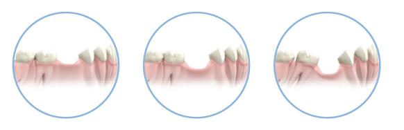 ¿Qué le pasa el hueso cuando se pierde un diente?