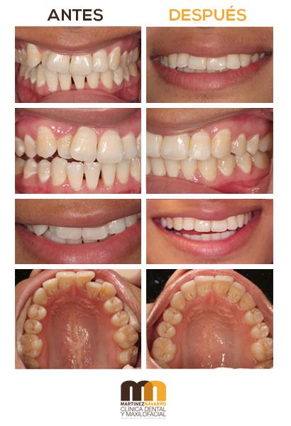 Ejemplos de tratamientos de ortodoncia invisible en la Clínica Martínez Navarro de Málaga